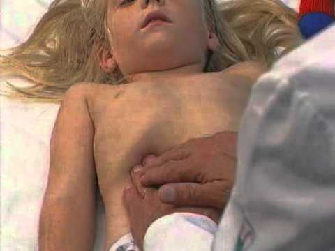 ImedrxTv The Video Blog Examination of Child Abdomen