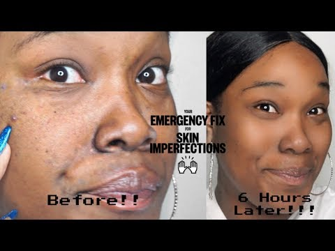 How to get rid of large pores and blackheads fast!! | Peace Out Acne Review