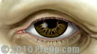 PreOp® Patient Education Small Incision Cataract Surgery
