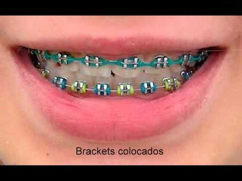 Brackets (Imagenes) - YouTube