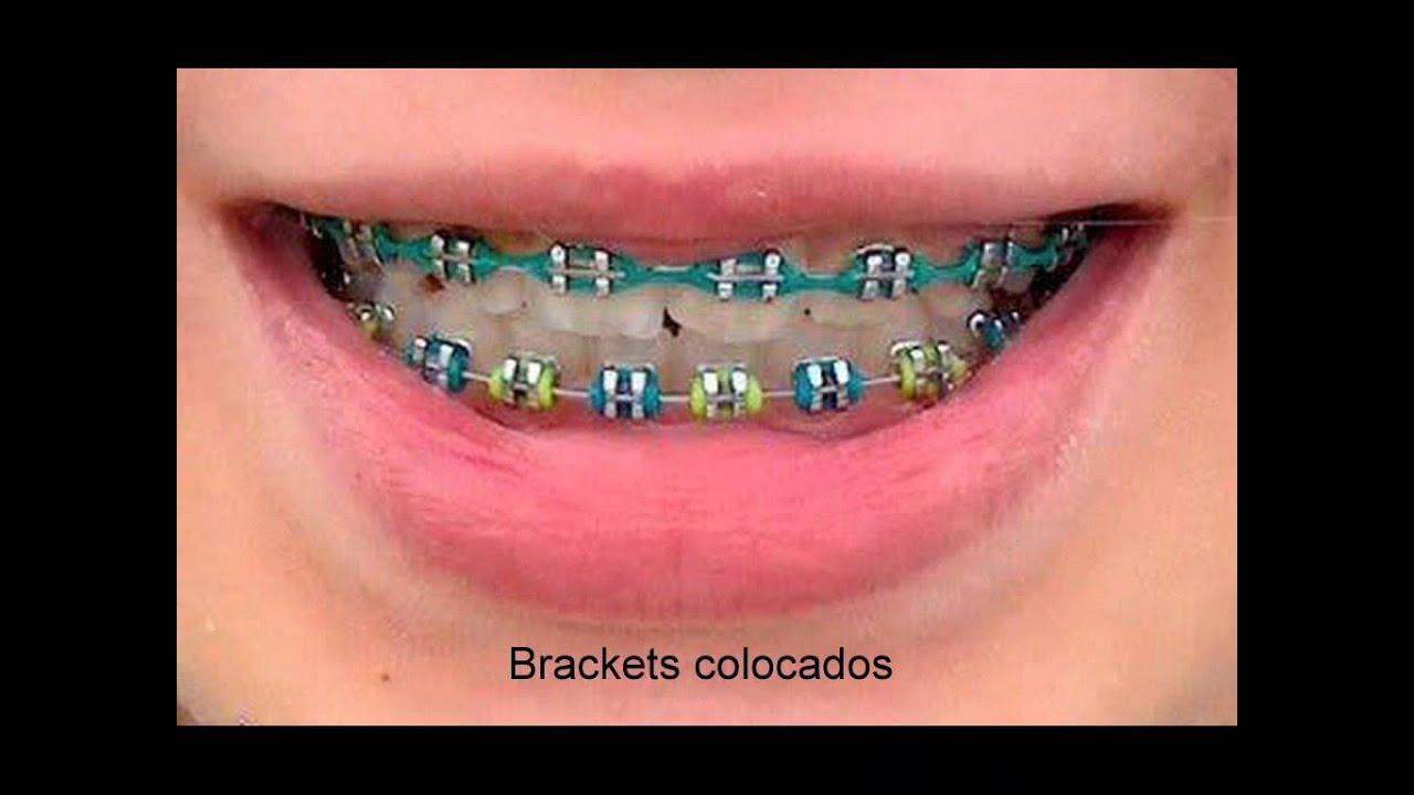 Brackets (Imagenes) - YouTube