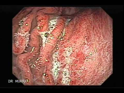gastritis congestiva