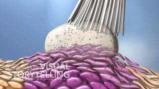 Actinic Keratosis Mode of Action Animation