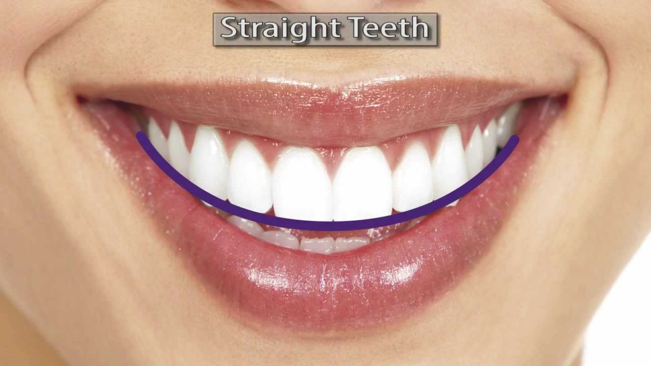 how to make rubber bands for braces work faster