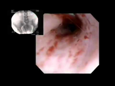 Digital Video Ureteroscopy Youtube