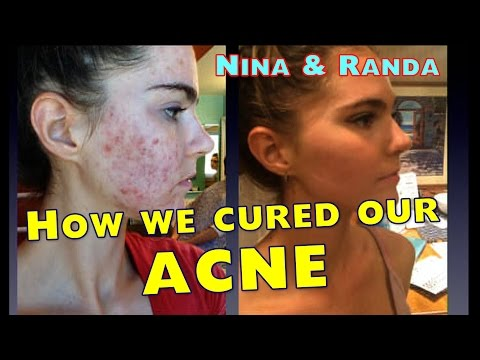 How We Cured Our Acne - Nina and Randa