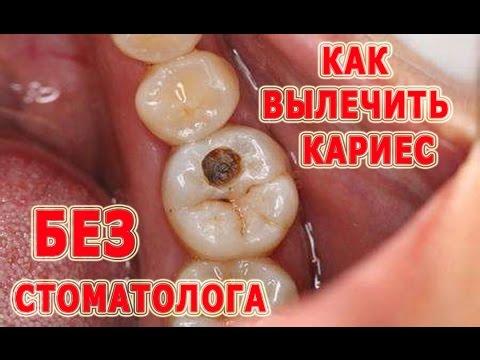 ★Как вылечить кариес без посещения стоматолога и одновременно восстановить зубы. Народные методы.