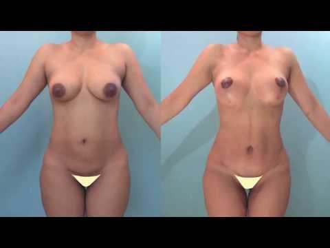 Abdominoplastia Basilio Boris Henriquez Cirujanos Plasticos Barranquilla Colombia Plicatura Músculos