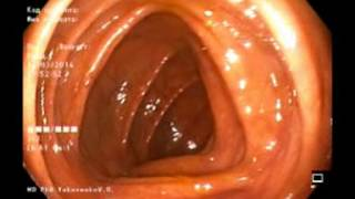 1 minutes 40 seconds Total Colonoscopy; 2 minutes from anus up to ileum