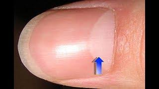 अंगूठे पर नाखून पर आधा चांद का राज क्या है? | ये संकेत है की आप एक बुद्धिमान इंसान हो | Signs