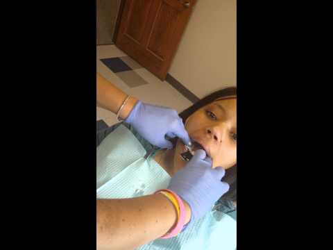 The first steps before getting braces raw footage