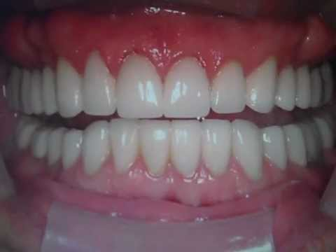 Porcelain Veneers- Dental Restoration- Austin Tx, Lakeway Tx Dentist