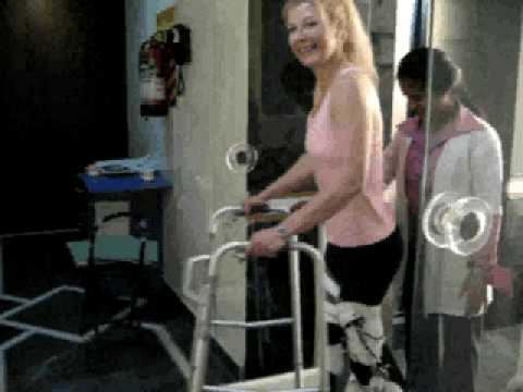 Amanda walks with new leg braces March 24, 09 Video