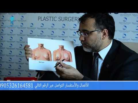 عملية تجميل الثدي في تركيا - شد وتكبير الصدر