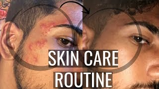 BYE BYE SPOTS! Quick & Simple Skin Care Routine (Oily & Acne Prone)