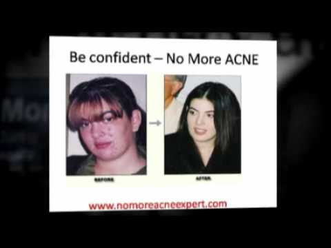 Acne Cure Natural and Permanent