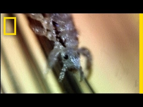 Secret Life of Head Lice | I Didn't Know That
