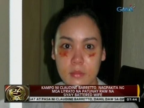 Claudine Barretto, nagka-pasa raw dahil sa post-surgical procedure, ayon kina Raymart Santiago