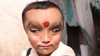 Video: Boy with mystery condition worshiped as a Hindu God in India