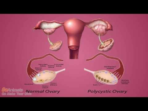ovarian cyst and fibroids