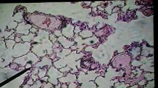 Histo- Trachea, Bronchi & Lungs Part 10 (16/03/09)