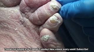Nail Fungus with Diabetes and Lymphedema - Dr Nail Nipper