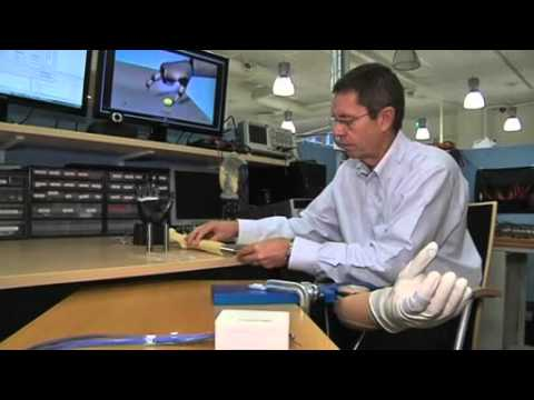 Mind controlled prosthetic arm restores amputee dexterity