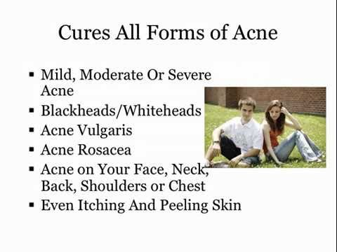 Acne No More: [REVIEW] Permanent Acne Cure