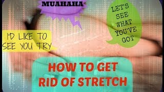 HOW STRETCH MARKS FORM AND HOW TO GET RID OF THEM: DML STYLE