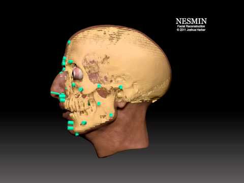 Nesmin Forensic Facial Reconstruction