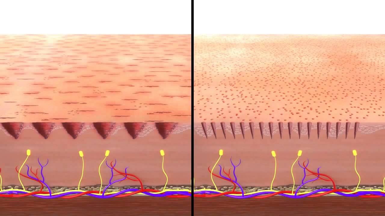 Micro Needling Dermapen Vs Dermaroller Youtube Youtube
