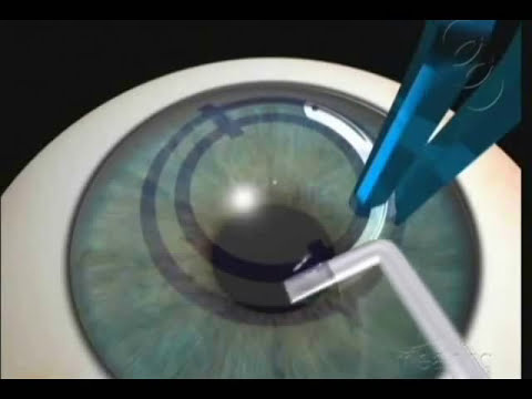 Corneal Ring Surgical Technique.wmv