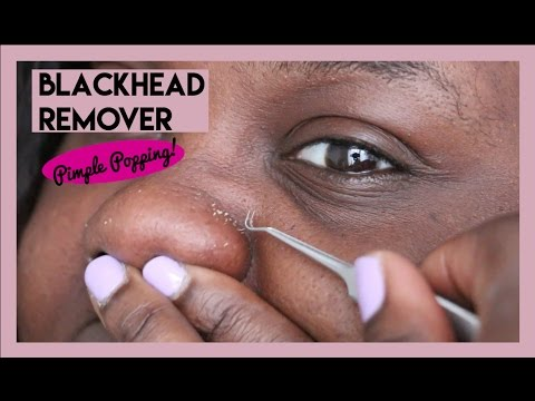 How to use blackhead removal tool