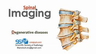 Imaging of Spine degenerative diseases (I) - Prof Dr. Mamdouh Mahfouz (In Arabic)
