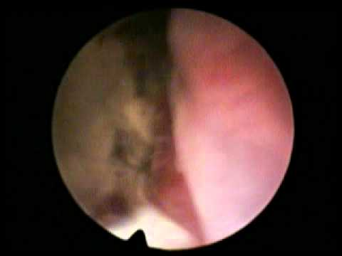 Vaginoscopy, vaginitis of dog, www.en.endovet.su thumbnail