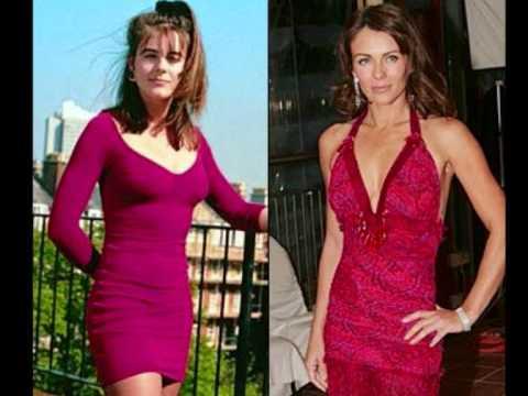 El antes y el despues de los famosos