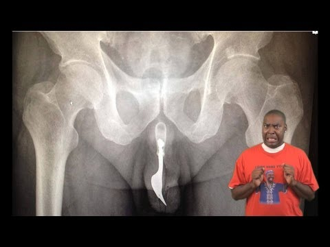 Man Gets Fork Stuck In His Penis   Urethra ! ★dsvl★ (david Spates) video