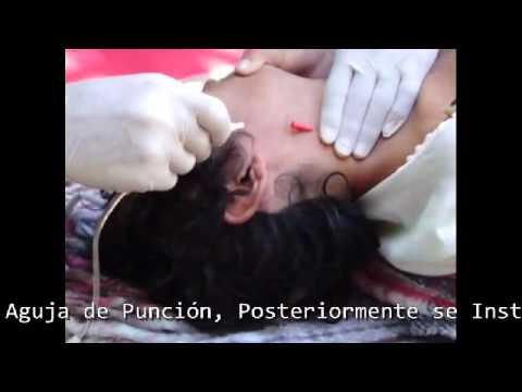 Acceso Venoso Yugular Externo Prehospitalario