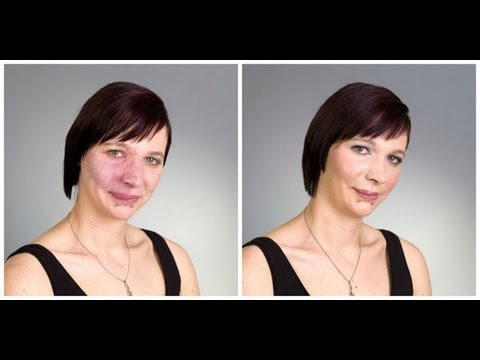 HOW TO: COVER BIRTHMARK - ACNE - SCARS - VITILIGO - TATTOO