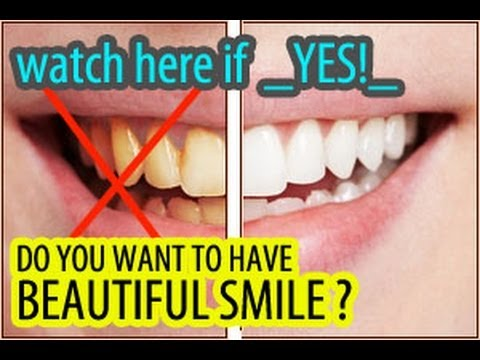 Teeth Whitening At Home (cheapest.safe.no sodium)