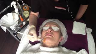 NeoStrata Glycolic Acid Skin Peel UK in Droitwich Clinic, Worcestershire
