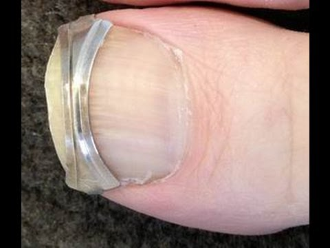 How to Straighten Ingrown Toenails - Attach a Spring Clip to Toenail Edges