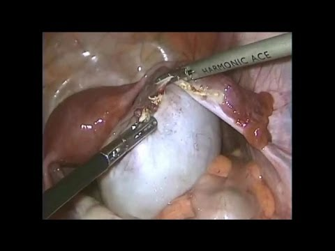Large Ovarian Cyst  10cm    Laparoscopic Ovariotomy