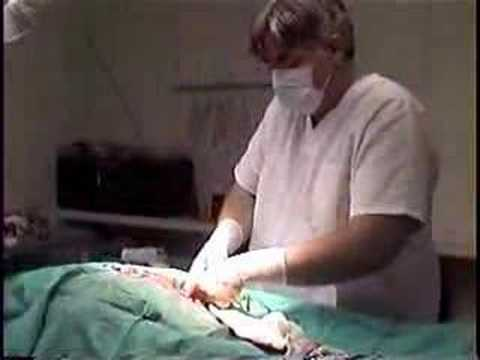 WARNING-ACTUAL C-SECTION SURGERY-BULLMASTIFF BABIES PT. 2