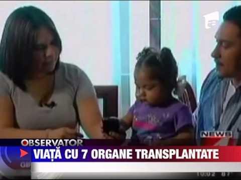 Unui Copil De 1 An Si Jumatate I-au Fost Transplantate 7 Organe Interne 17 Iunie 201 video