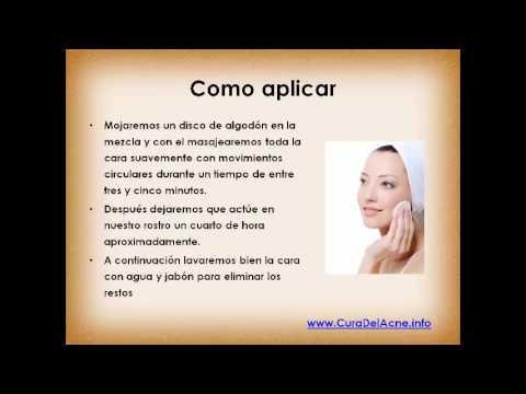 Como eliminar las manchas de acné