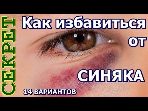 Чем свести синяк под глазом быстро в домашних условиях