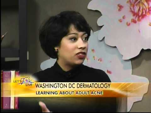 HELP WITH ADULT ACNE -- Interview with Dr. Yolanda Holmes