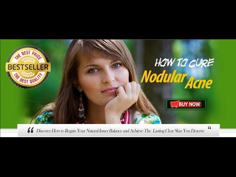 How To Cure Nodular Acne | How To Cure Nodular Acne Review