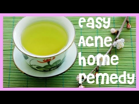 Easy Acne Home Remedy